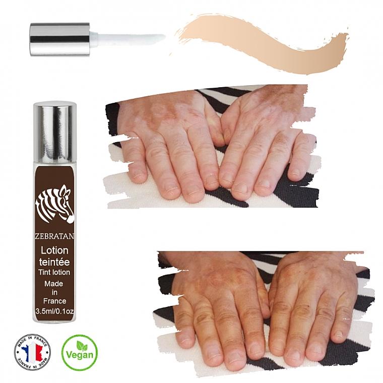 Vitiligo Tint Lotion - Zebratan Tint Lotion (Beige Clair) — photo N3