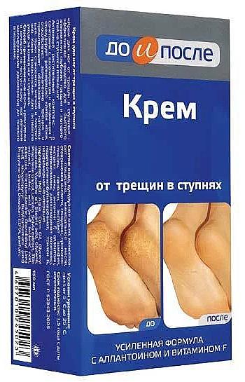 Cracked Foot Cream - Do i Posle